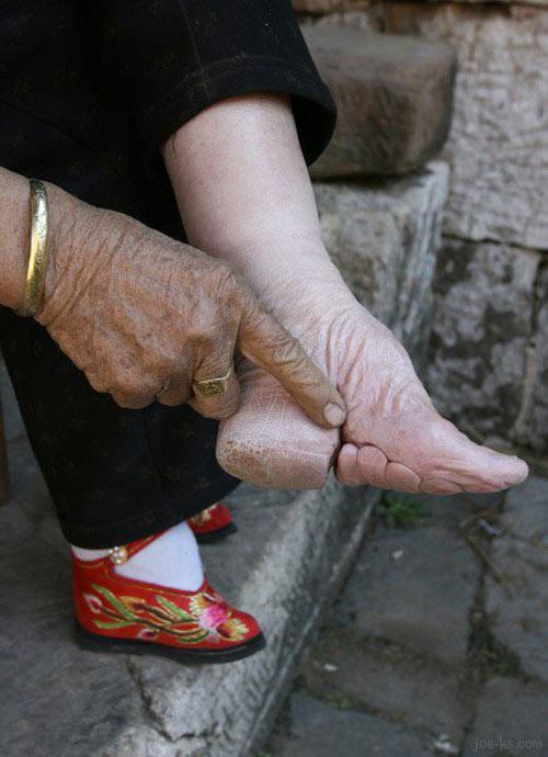 10 kiểu giày kỳ quái trong lịch sử thời trang - 17