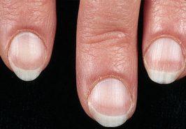 Cách chuẩn đoán bệnh qua móng tay