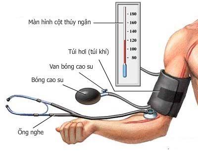 Vì sao bị cao huyết áp?