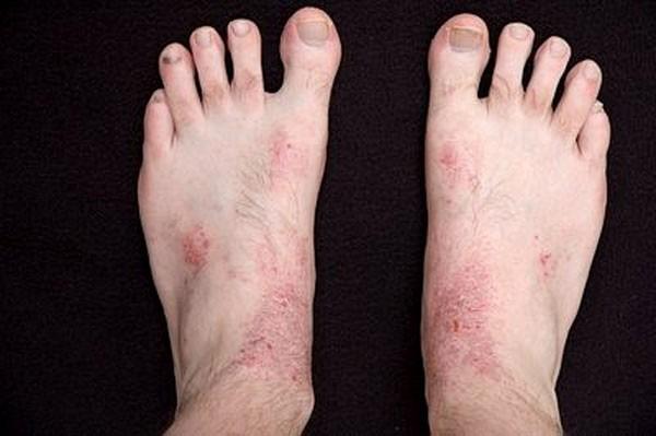 Các bệnh thường gặp trong mùa mưa và cách phòng tránh hiệu quả 1