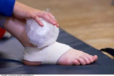 Bong gân rất dễ chữa trị, phụ thuộc vào mức độ nặng nhẹ.