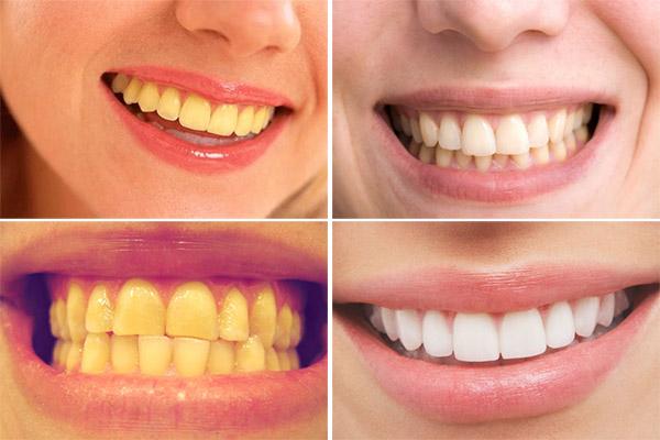 trắng răng