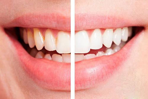 cách lấy cao răng tại nhà