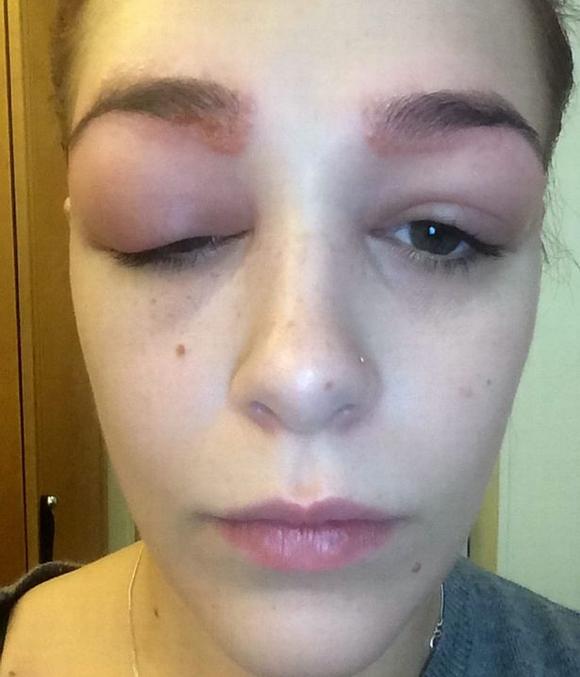 mắt bị phù nề