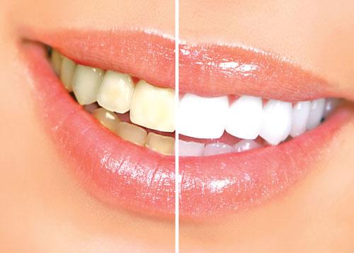 điều chưa biết về răng ố vàng