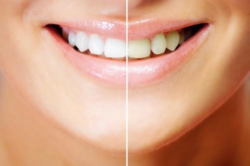 cách tự lấy cao răng