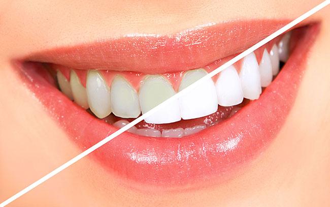 tự lấy cao răng