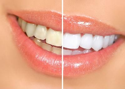 lấy coa răng tại nhà