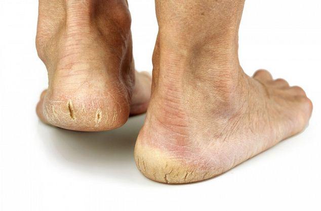 chữa nứt gót chân