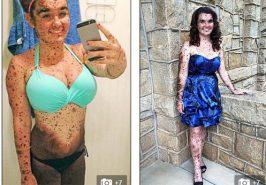 Thiếu nữ xinh đẹp bị xa lánh vì có làn da đầy tì vết