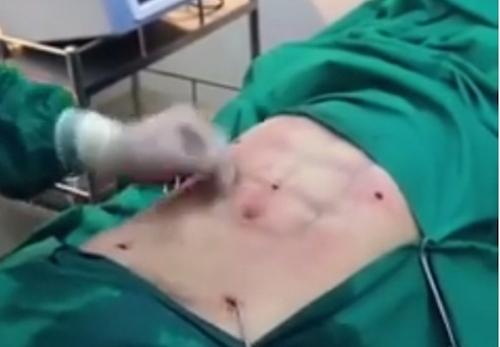 phẫu thuật cơ bụng